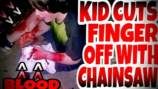 KID CUTS HIS FINGER OFF WITH CHAINSAW PRANK!!! thumbnail