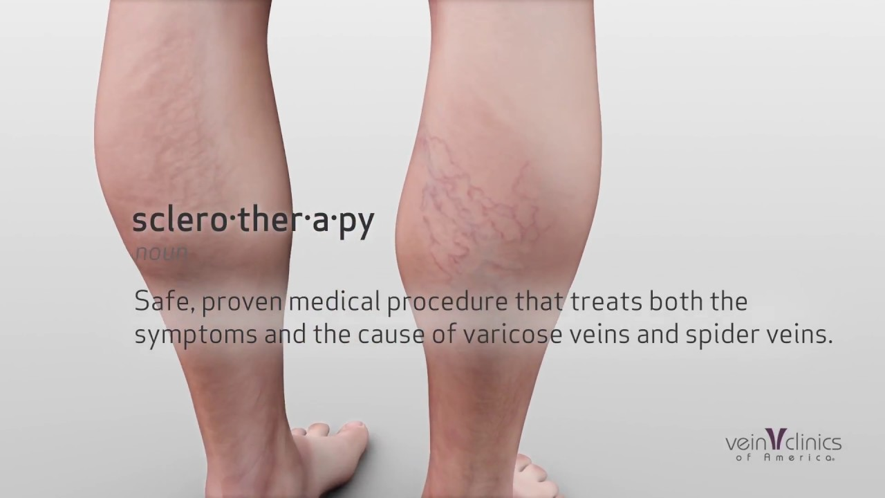 What Is Sclerotherapy Treatment Vein Clinics Of America Youtube
