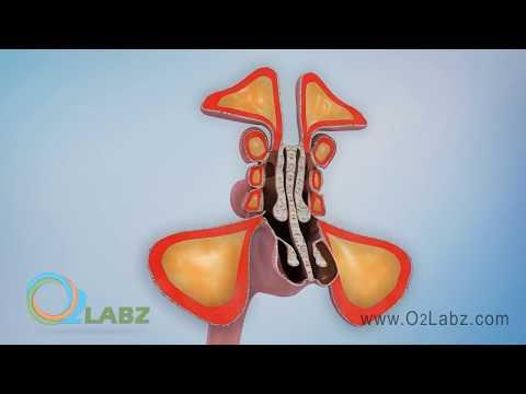 Sinusitis Animation