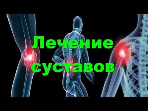 💥Лечение суставов, купить гель для лечения суставов, как избавиться от болей в суставах💥