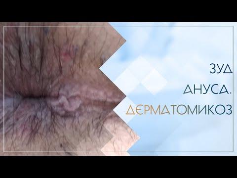 🙁 Зуд ануса. Дерматомикоз. Клинический случай №45