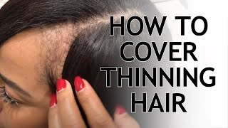 THINNING HAIR SOLUTIONS WITH KIYAH WRIGHT | WEAVE PART LINE