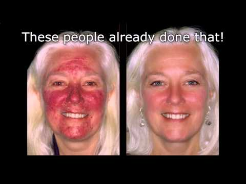 Watch Fade Acne Scars With Lemon! Naturally Lighten Skin ...