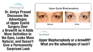 Brow Lift or Blepharoplasty - Why Upper Eyelid Surgery Results in a More Natural and Defined Look