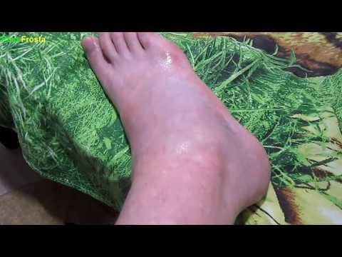 Ушиб ноги как долго болит