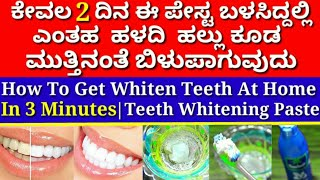 How To Whiten Teeth At Home In 3 Minutes | Teeth Whitening At Home |Whitening Teeth | 100% Effective