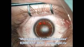 ИнтраЛАСИК (IntraLASIK) - лазерная коррекция зрения(Видео операции методом Интра-ЛАСИК (Intra-LASIK) - второй этап, работа эксимерного лазера. Более подробно на нашем..., 2016-04-14T11:02:45.000Z)