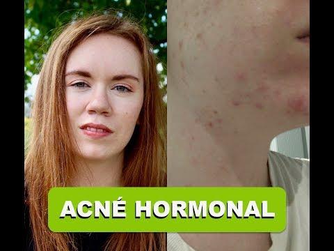 STORYTIME : Arrêt De Ma Pilule 1 Ans Plus Tard = ACNÉ HORMONAL? / Partie 1