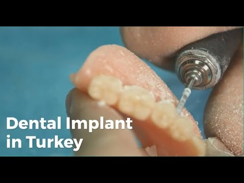 Dental Implant in Turkey, Full Mouth Dental Implant Cost in Turkey @Lyfboat