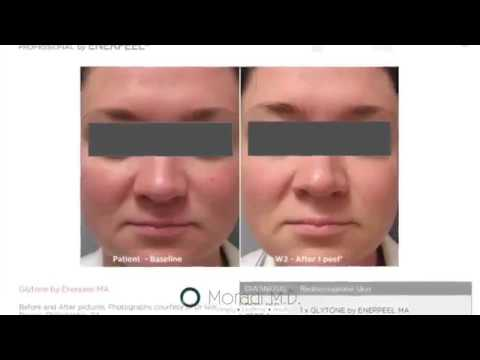 Mandelic Peel San Diego California at Moradi MD Chemical Peel for Redness