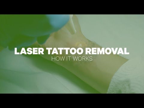Laser Tattoo Removal How It Works
