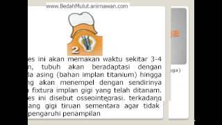video pasang implan gigi geraham bersama dokter Bedah Mulut Ika Ratna Sp.BM..