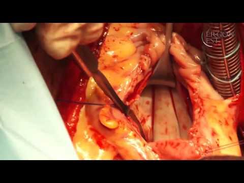 Вопрос: Как подготовиться к операции на сердце?