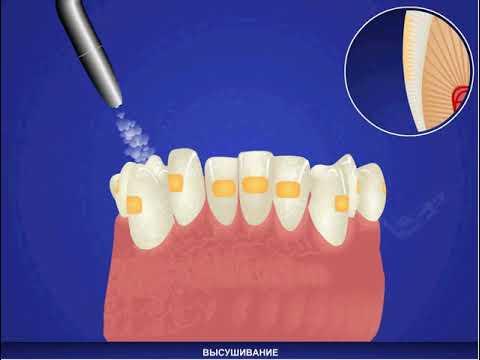 Ортодонтическое лечение брекетами