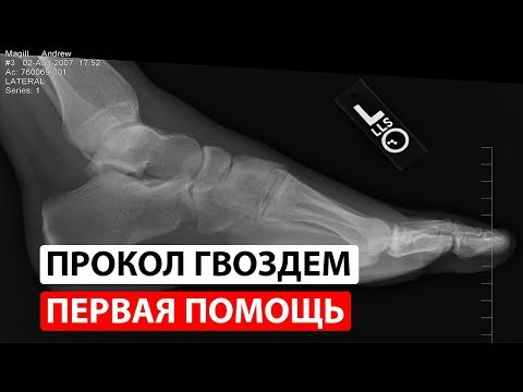 После прокола гвоздем болит нога