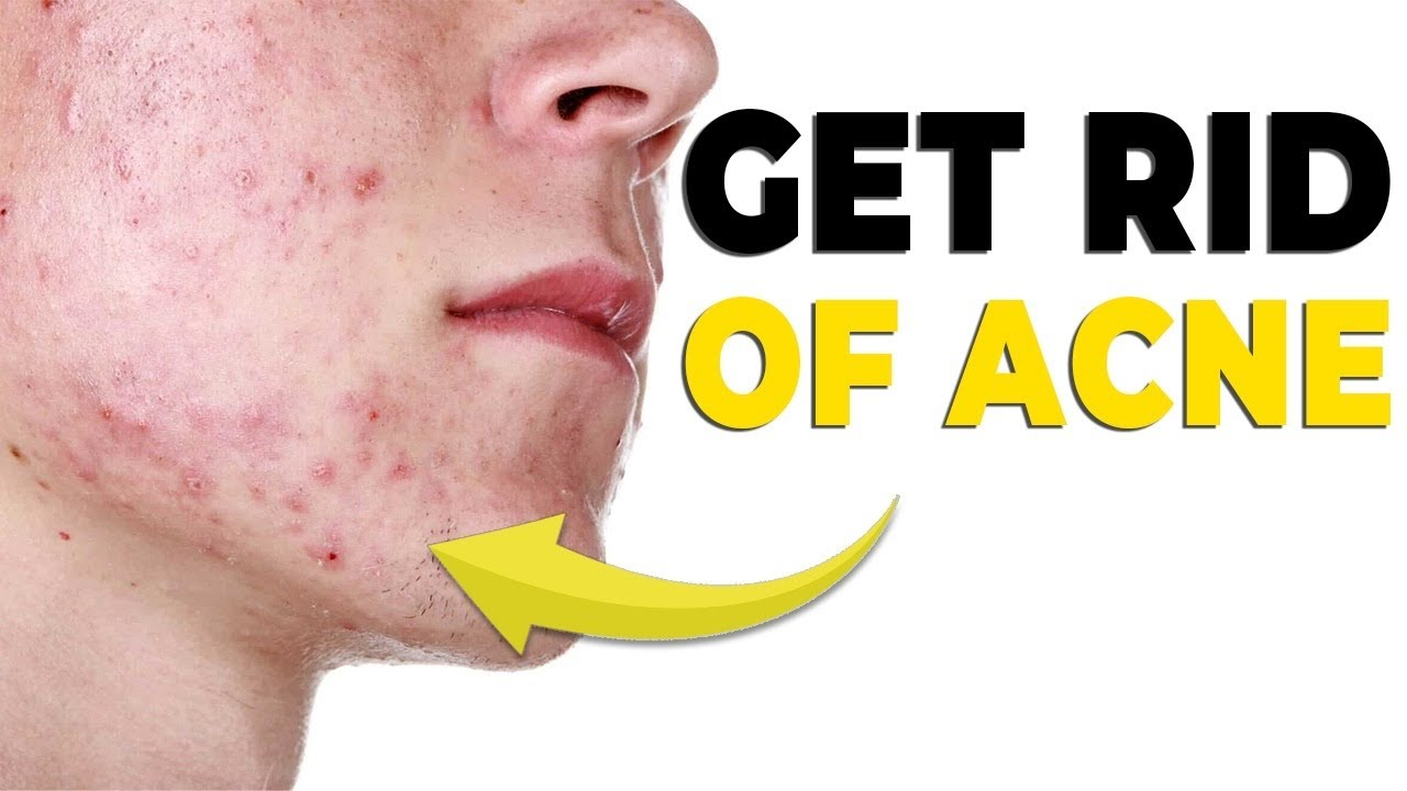 5 Skin Imperfections you can fix FAST & OVERNIGHT *no more acne*