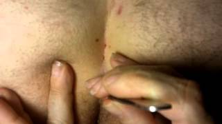 Pilonidal Cyst Treatment