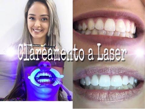 Clareamento Dental A Laser Youtube