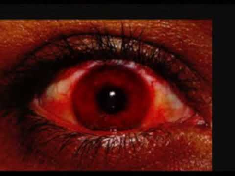 Resultado de imagem para olhos de sangue