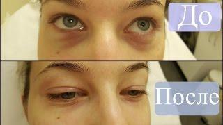 Убираем синячки  мешки под глазами | Коррекция носослезной борозды филлером