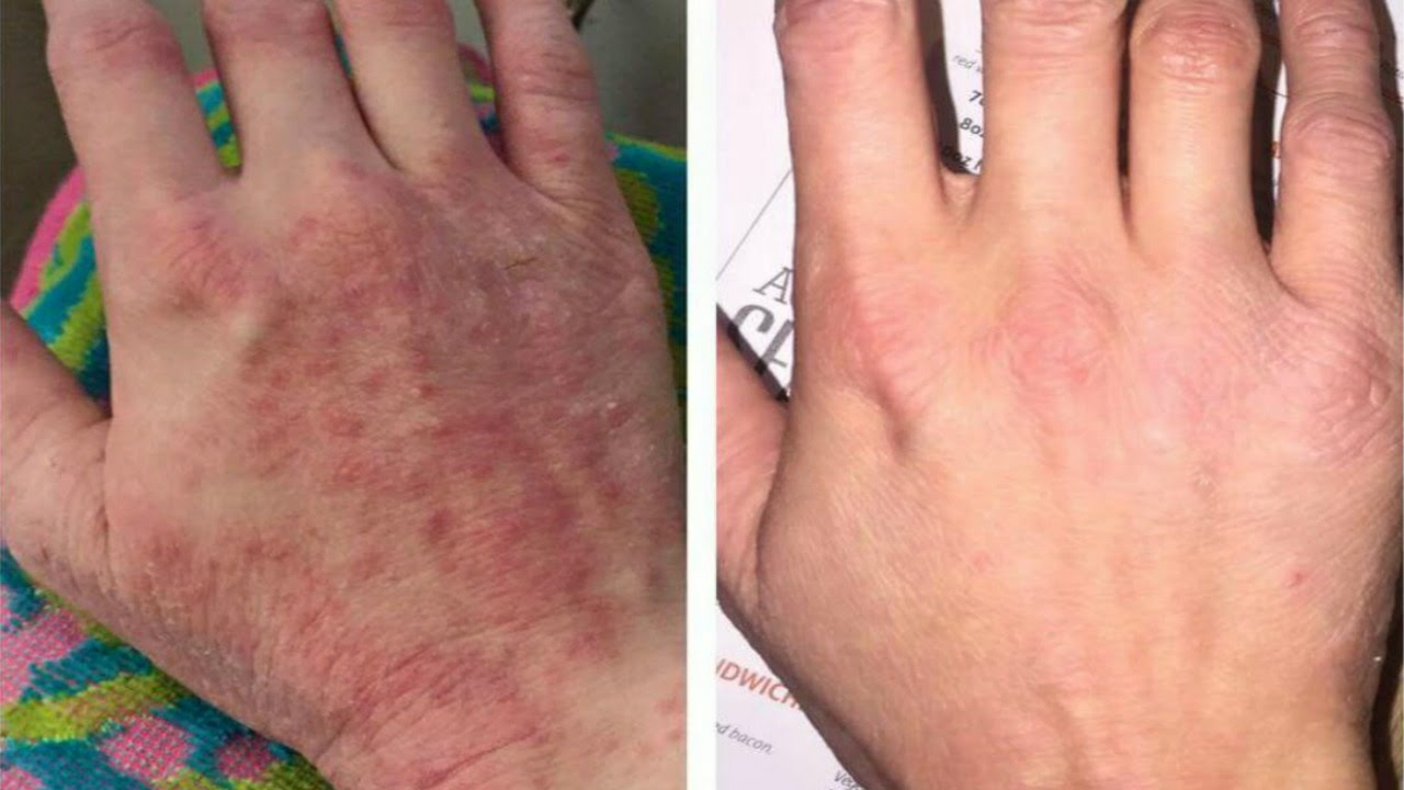 Cracks in the fingers and toes: causes 75