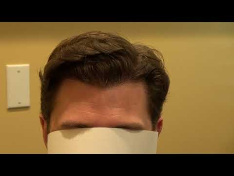 Hairline Lowering FUE Hair Transplant Surgery Fix Bald Hair Loss Dr. Diep http://www.mhtaclinic.com