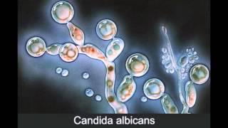 Кандидоз. Лечение кандидоза. Часть 1. Что такое кандида.