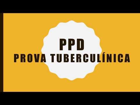 Entenda mais sobre a Prova Tuberculínica ou PPD  (Teste da Tuberculose)