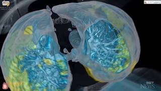 3D imaging shows how quickly COVID-19 can attack a healthy person's lungs