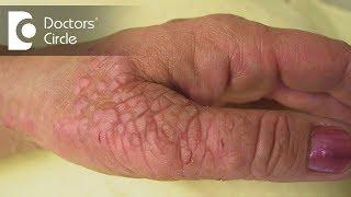Eksim (Dermatitis) 101 – dr. Heru Nugraha, SpKK | Bamed Skin Care.