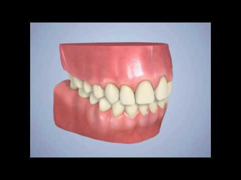 Inman Clear Aligners- Naidu Orthodontics