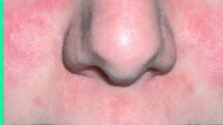 Remedios casero para el Staphylococcus aureus