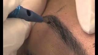 Kalıcı makyaj ile kas nasıl yapılır?