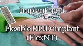 The Next Generation of RFID Implants: The FlexNT
