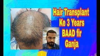 No Hair Care After Hair Transplant Result Baldness After 3 Years