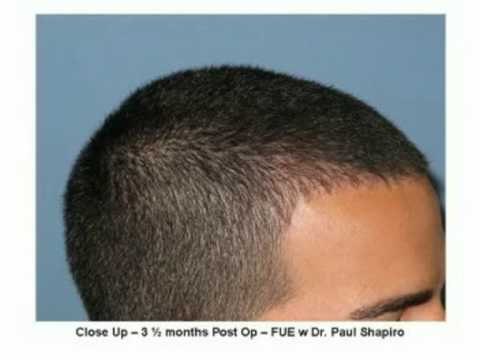 hairline example by Dr Paul Shapiro of Shapiro Medical Group - YouTube