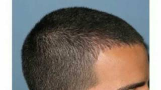 FUE hair transplant, hairline example by  Dr Paul Shapiro of Shapiro Medical Group