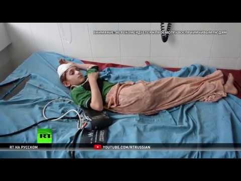 Агентство Ruptly пообщалось с пострадавшими от авиаудара США на юге Афганистана