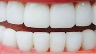 صدق او لا تصدق!! تبيض الاسنان في 3 دقائق وازاله الاصفرار بمكون وااحد فقط مجررربه مني شخصياا