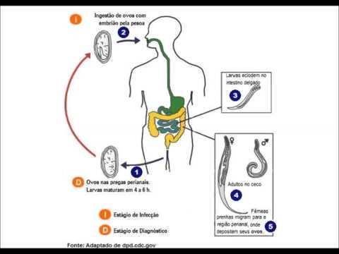 Enterobíase (Enterobiasis)