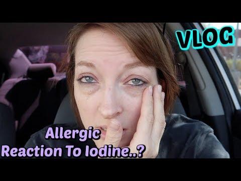 Allergic Reaction To Iodine?