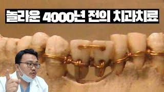 놀라운 4000년 전의 치과치료 방법.