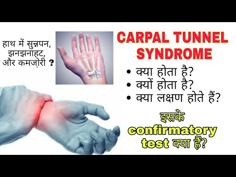 Carpal Tunnel Syndrome.