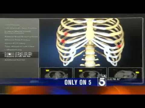 Garo Mardirossian: Exclusive Images of Kelly Thomas' Injuries