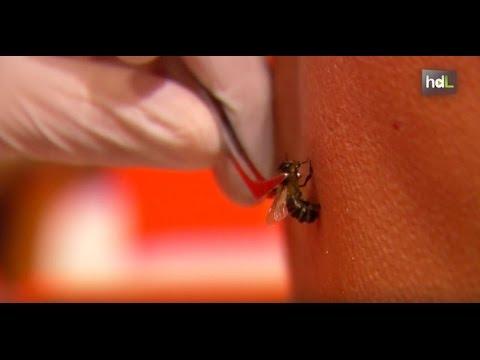Que sirve para curar una picadura de abeja