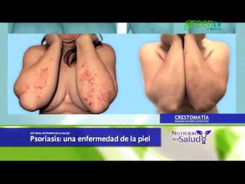 El tratamiento de la psoriasis por el bronceado