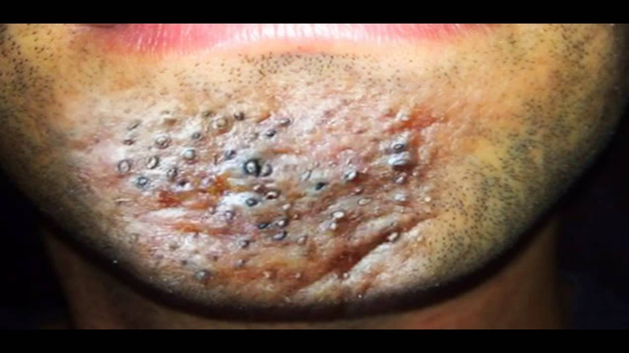 Blackhead Acne Inversa Boils Abscesses Wounds And