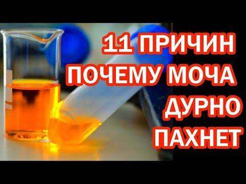 Запах мочи как сигнал болезни: 11 причин, что вы пахнете аммиаком или еще хуже #здоровье | неприятного | избавиться | простатит | нарушение | веществ | анализы | цистит | уретри | обмена | запаха