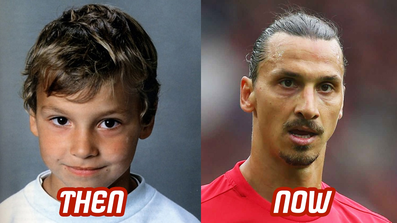 Zlatan Ibrahimovic Transformation Then And Now Face Nose Surgery Hairstyle