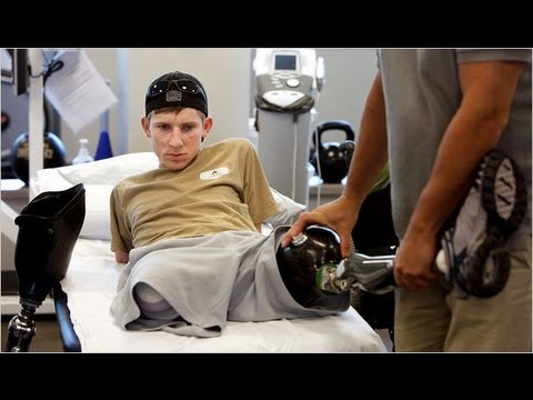 US soldier recovers after losing all four limbs